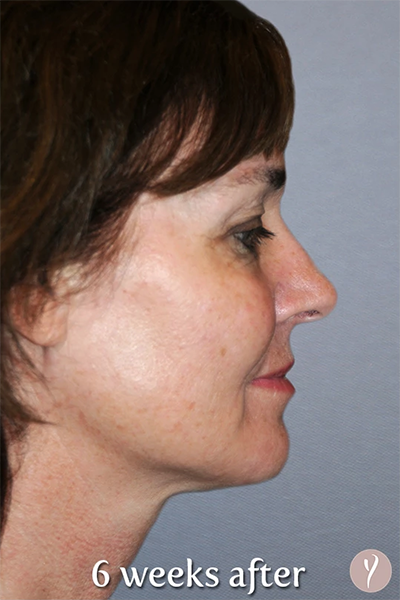 Y Lift Before & After Patient #5685